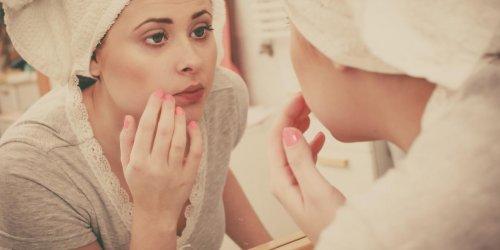 Acné : médicaments contre l'acné et risque de dépression et ...