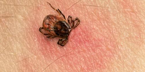 Maladie de Lyme : comment se pose le diagnostic ?
