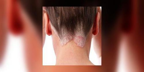Psoriasis, et si on en parlait ?