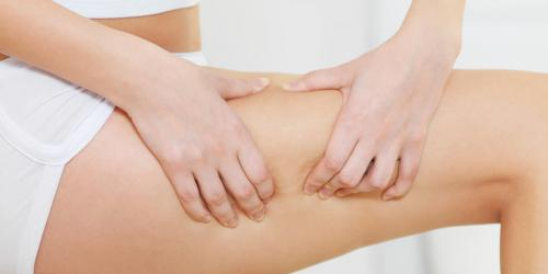 Cellulite : 3 manieres de combattre la retention d-eau