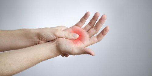 Syndrome du canal carpien : causes, symptômes et traitements ...