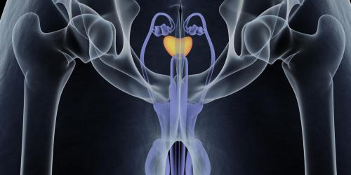 Prostate : les operations possibles