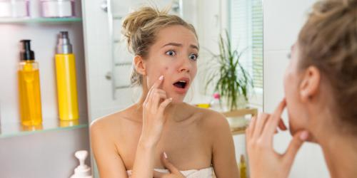 L'acne des adultes : quand l'acne joue les prolongations