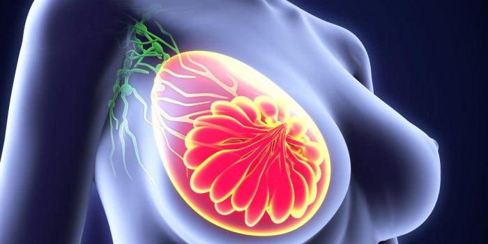 Boule, démangeaison... les signes d'alerte du cancer du sein